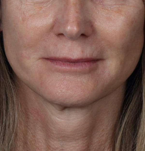 Fillers Gallery - Patient 61837737 - Image 1