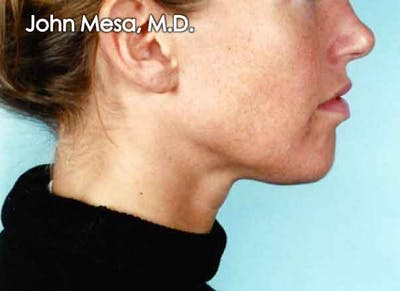Chin Augmentation with Implant Gallery - Patient 6371243 - Image 1