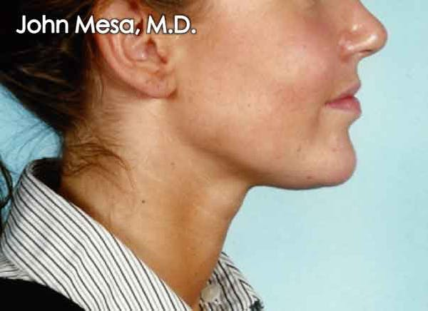 Chin Augmentation with Implant Gallery - Patient 6371243 - Image 2