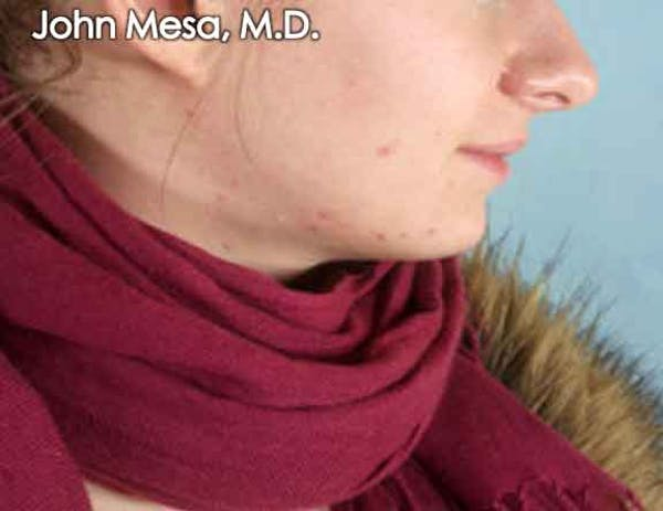 Chin Augmentation with Implant Gallery - Patient 6371244 - Image 1