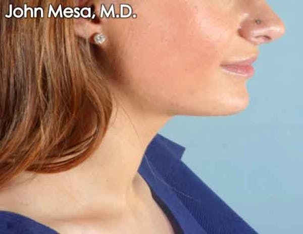 Chin Augmentation with Implant Gallery - Patient 6371244 - Image 2