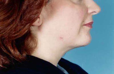 Chin Augmentation with Implant Gallery - Patient 6371245 - Image 2