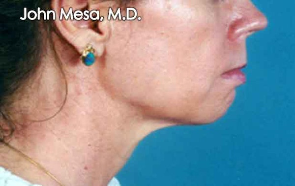 Chin Augmentation with Implant Gallery - Patient 6371247 - Image 1