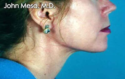 Chin Augmentation with Implant Gallery - Patient 6371247 - Image 2