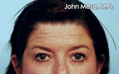 Endoscopic Brow Lift Gallery - Patient 6371299 - Image 1