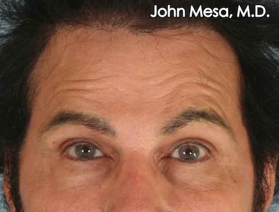 Endoscopic Brow Lift Gallery - Patient 6371300 - Image 1