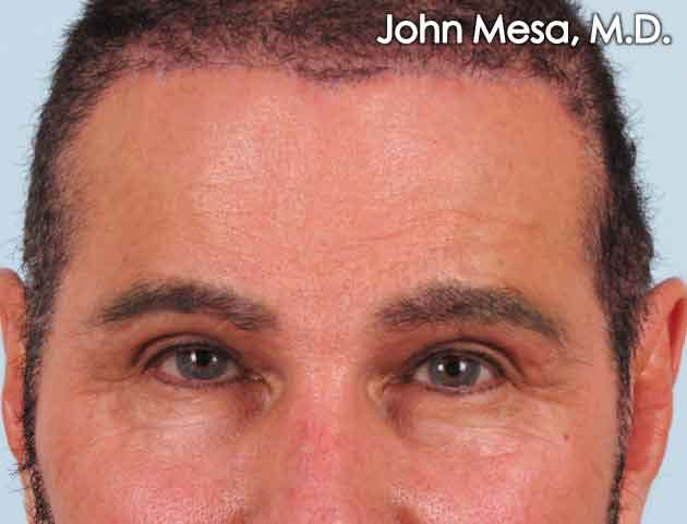 Endoscopic Brow Lift Gallery - Patient 6371300 - Image 2