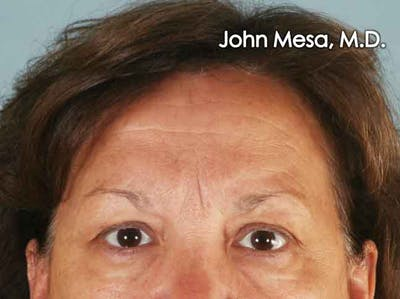 Endoscopic Brow Lift Gallery - Patient 6371302 - Image 1