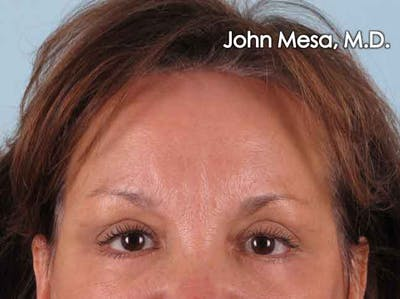 Endoscopic Brow Lift Gallery - Patient 6371302 - Image 2