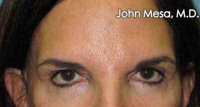 Endoscopic Brow Lift Gallery - Patient 6371303 - Image 1