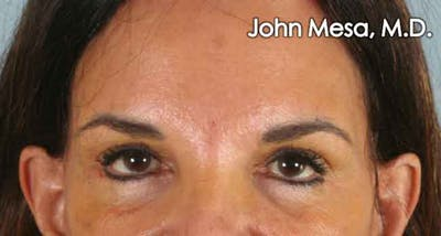 Endoscopic Brow Lift Gallery - Patient 6371303 - Image 2