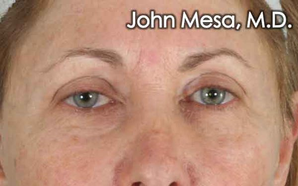 Eyelid Lift Surgery Gallery - Patient 6371334 - Image 1