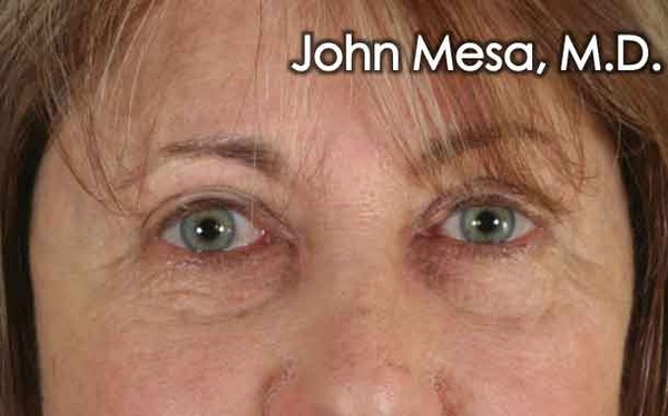 Eyelid Surgery results in NYC with Dr. Mesa