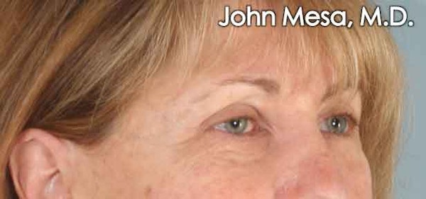 Eyelid Lift Surgery Gallery - Patient 6371334 - Image 3