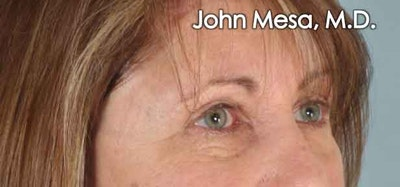 Eyelid Lift Surgery Gallery - Patient 6371334 - Image 4