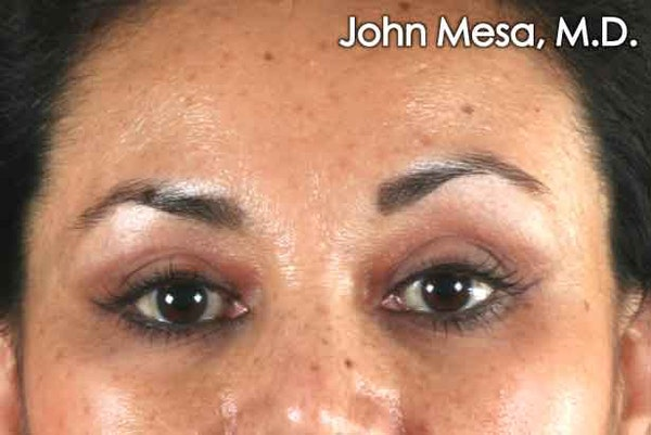 Eyelid Lift Surgery Gallery - Patient 6371336 - Image 2