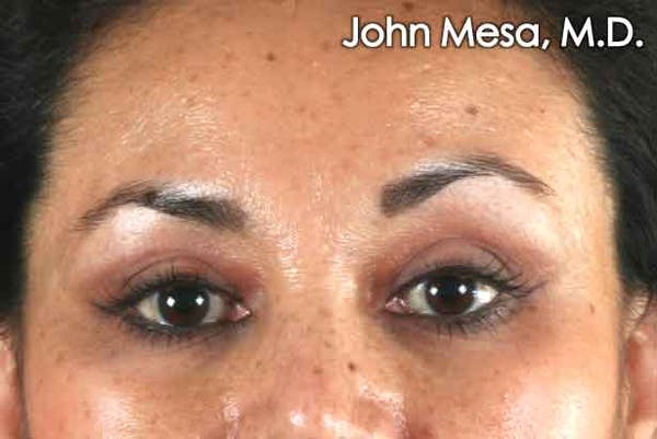 Blepharoplasty results in NYC with Dr. Mesa