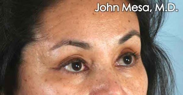 Eyelid Lift Surgery Gallery - Patient 6371336 - Image 3