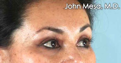 Eyelid Lift Surgery Gallery - Patient 6371336 - Image 4