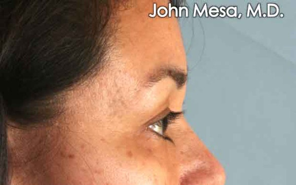 Eyelid Lift Surgery Gallery - Patient 6371336 - Image 5