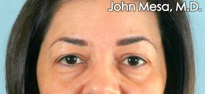 Eyelid Lift Surgery Gallery - Patient 6371337 - Image 1