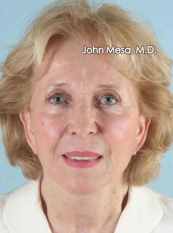 Facelift Gallery - Patient 6371339 - Image 2