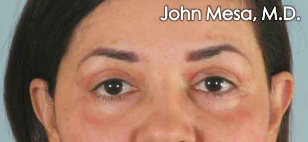 Eyelid Lift Surgery Gallery - Patient 6371337 - Image 2