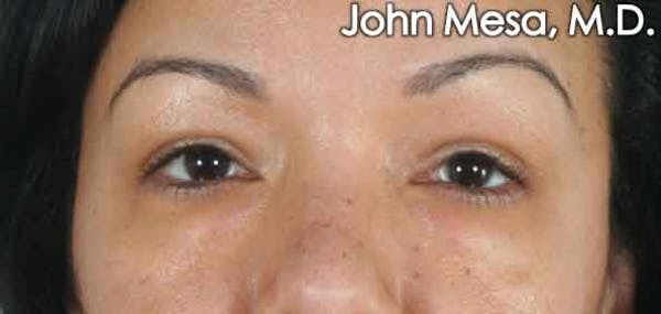 Eyelid Lift Surgery Gallery - Patient 6371338 - Image 1
