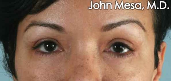 Eyelid Lift Surgery Gallery - Patient 6371338 - Image 2