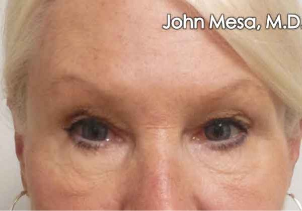 Eyelid Lift Surgery Gallery - Patient 6371340 - Image 1