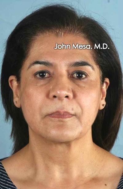 Facelift Gallery - Patient 6371342 - Image 1