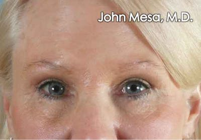 Eyelid Lift Surgery Gallery - Patient 6371340 - Image 2