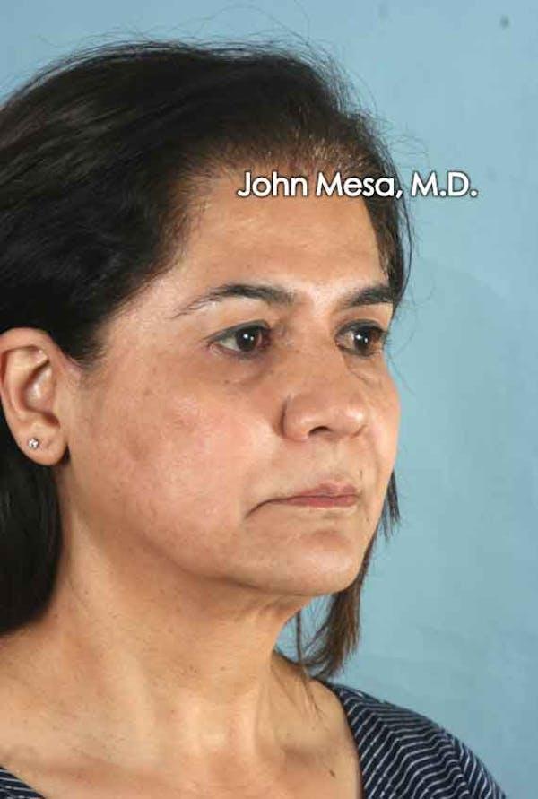 Facelift Gallery - Patient 6371342 - Image 3