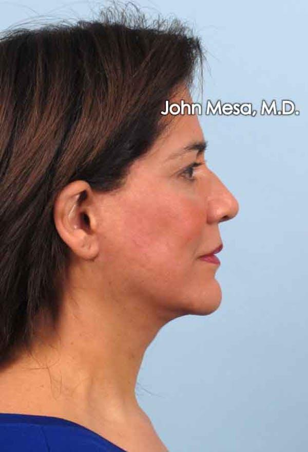 Facelift Gallery - Patient 6371342 - Image 6