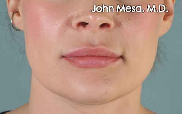 Lip Augmentation Gallery - Patient 6371343 - Image 1