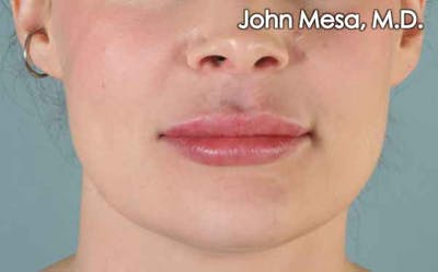 Lip Augmentation Gallery - Patient 6371343 - Image 2