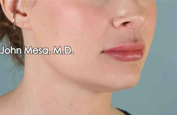 Lip Augmentation Gallery - Patient 6371343 - Image 4