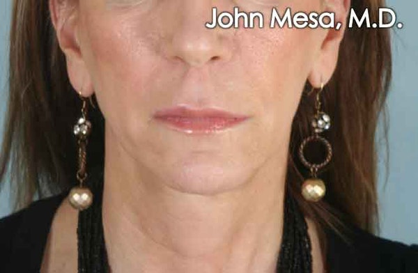 Upper Lip Shortening Gallery - Patient 6371361 - Image 1