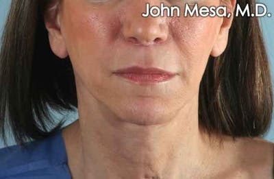 Upper Lip Shortening Gallery - Patient 6371361 - Image 2