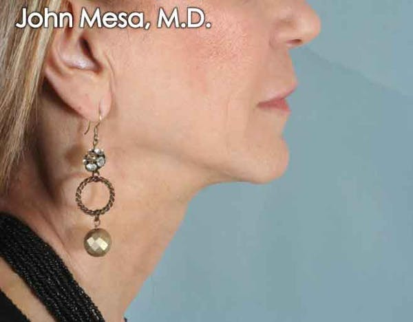 Upper Lip Shortening Gallery - Patient 6371361 - Image 3