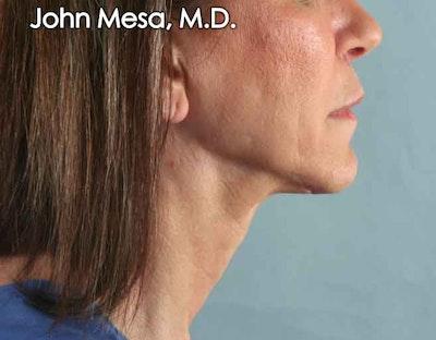 Upper Lip Shortening Gallery - Patient 6371361 - Image 4
