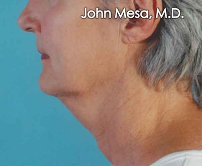 Neck Lift Gallery - Patient 6371365 - Image 1