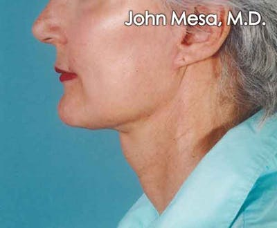Neck Lift Gallery - Patient 6371365 - Image 2