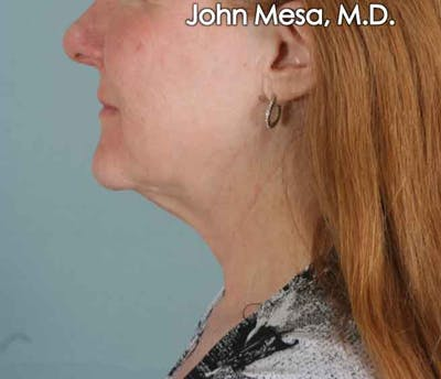 Neck Lift Gallery - Patient 6371368 - Image 1