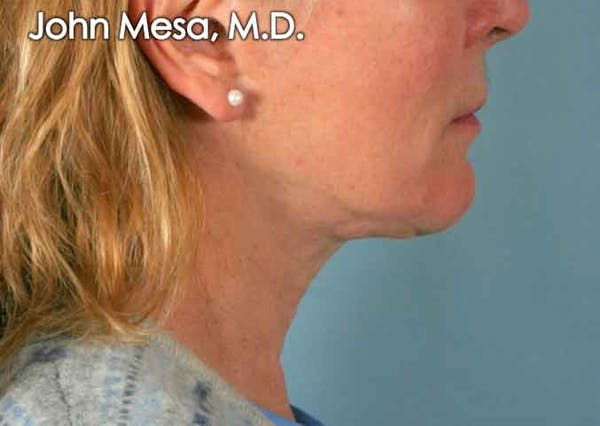 Neck Lift Gallery - Patient 6371369 - Image 1