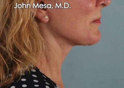 Neck Lift Gallery - Patient 6371369 - Image 2