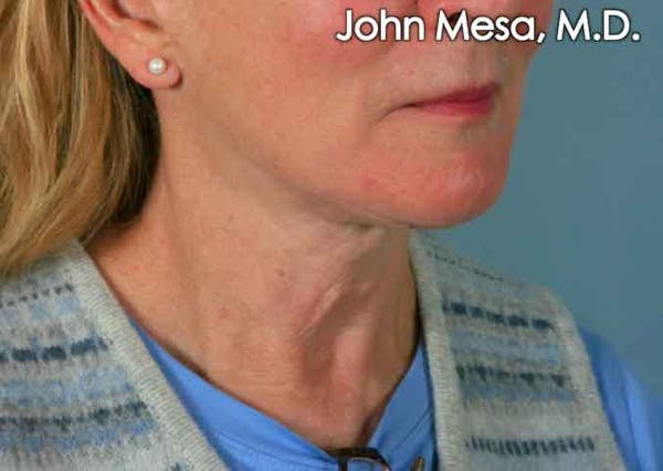 Neck Lift Gallery - Patient 6371369 - Image 3