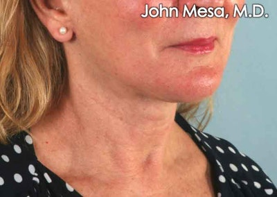 Neck Lift Gallery - Patient 6371369 - Image 4