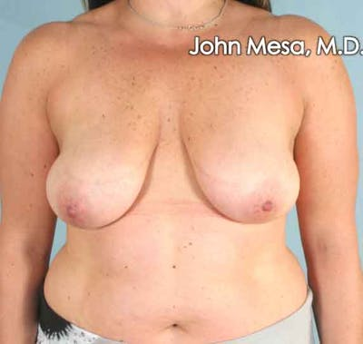 Breast Augmentation and Lift Gallery - Patient 6371447 - Image 1