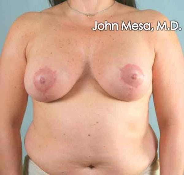 Breast Augmentation and Lift Gallery - Patient 6371447 - Image 2